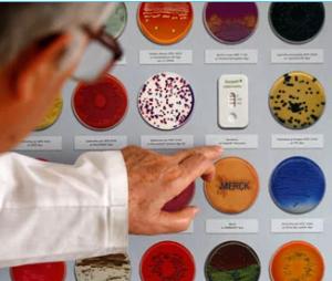 e.coli virusi bacterii alimente